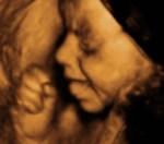3d-ultrasound-photo-001