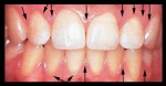 gum tissue border