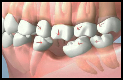 posterior teeth drifting use
