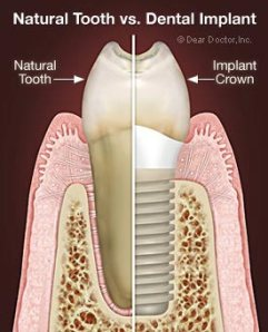 tooth vs implant